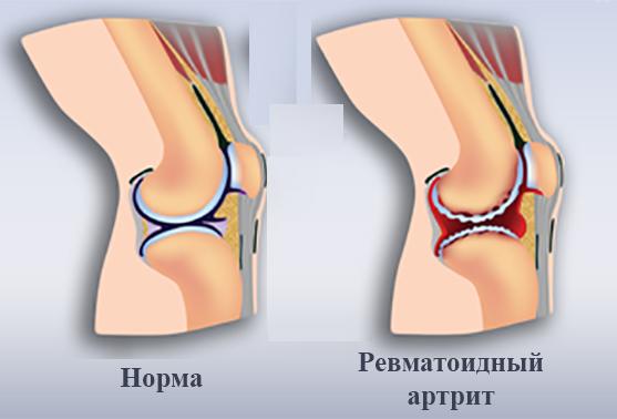Ревматоидный артрит при беременности причины особенности и лечение