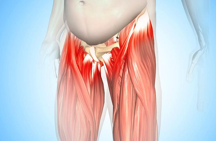 Как выглядит тендиноз тазобедренного сустава