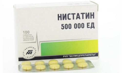 Нистатин: особенности применения при стоматите