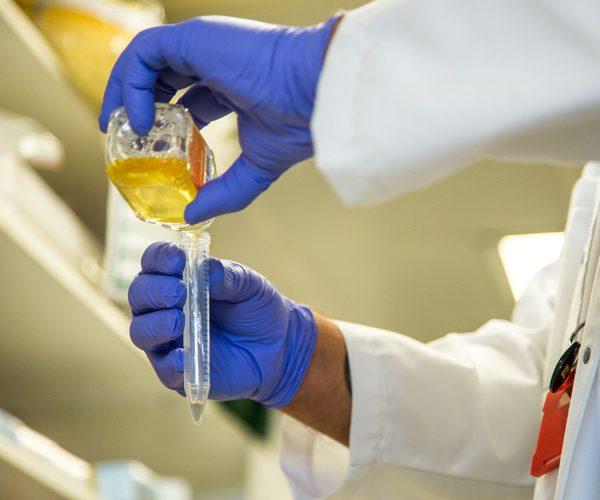 Насколько опасно появление сахара в моче и как его лечить