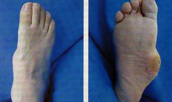 Диабетическая остеоартропатия симптоматика диагностика и лечение