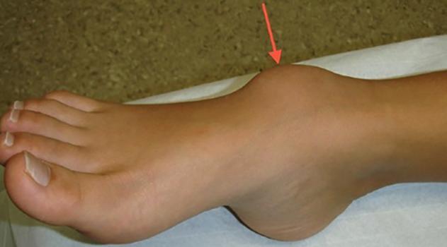 Симптомы гигромы голентостопа