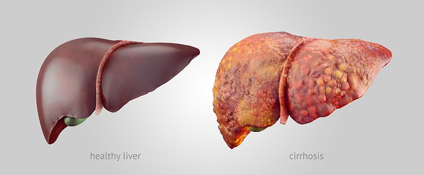 Цирроз печени и портальная гипертензия