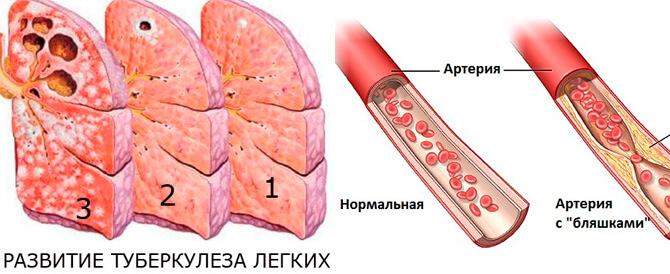 Туберкулез, сосудистые патологии