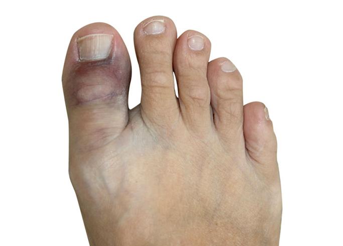 Как выглядит перелом большого пальца