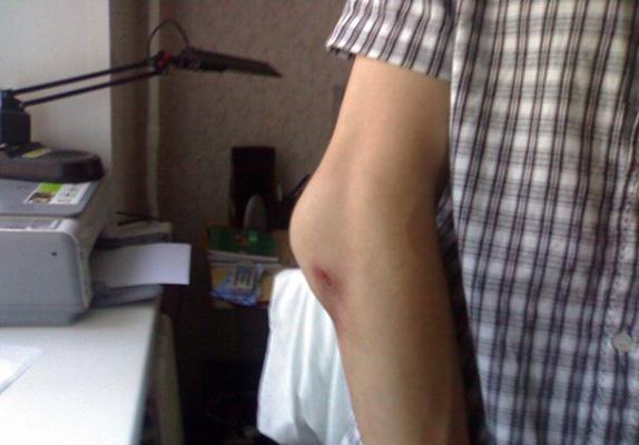 Как выглядит перелом