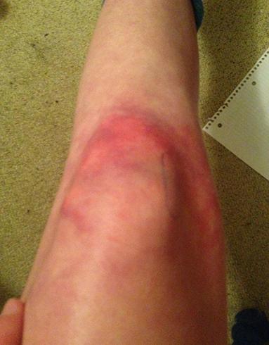 Сильный ушиб колена