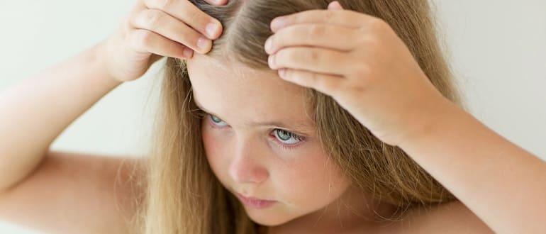 Проверенные способы лечения перхоти у ребенка