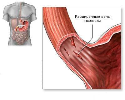 Пищеводное кровотечение