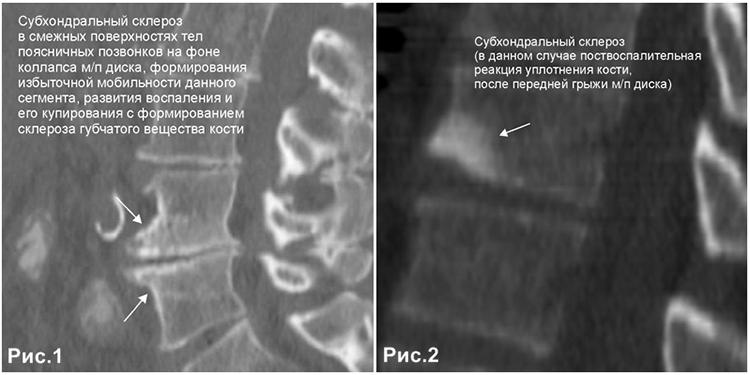 Субхондральный склероз замыкательных пластинок на снимке