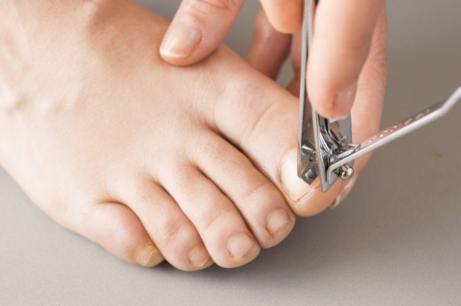 Грибковая инфекция ногтей