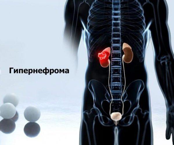 Гипернефрома