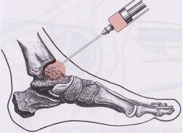 Пункция голеностопа