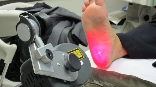 Удаление пяточной шпоры хирургическим путем. Виды операций, их преимущества и недостатки
