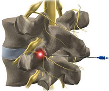 Ризотомия фасета