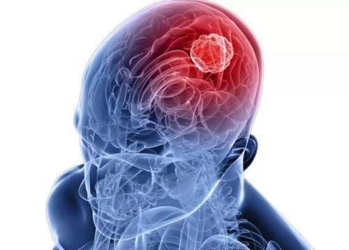 Герпетическое поражение мозга