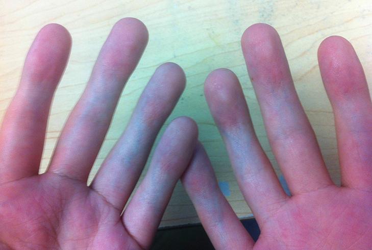 Не сгибаются пальцы