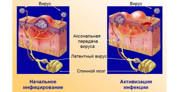 Проникновение вируса в организм человека