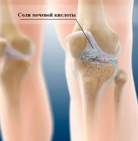 Подагрический Артрит Коленного Сустава Диета. Диета и питание при подагрическом артрите суставов