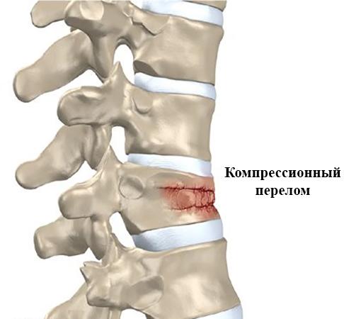 рядом компрессионные переломы позвоночника картинки тому под