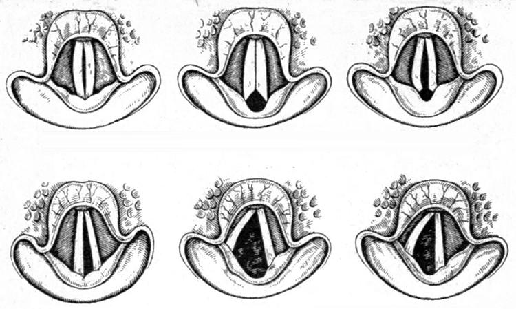 Виды парезов голосовых связок: