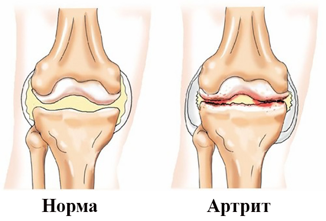 Пиявки при артрозе – альтернатива инъекциям с комплексным действием. Пиявки при артрите коленного сустава