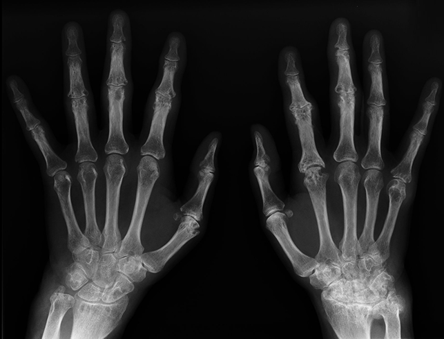 Снимок ревматоидного артрита