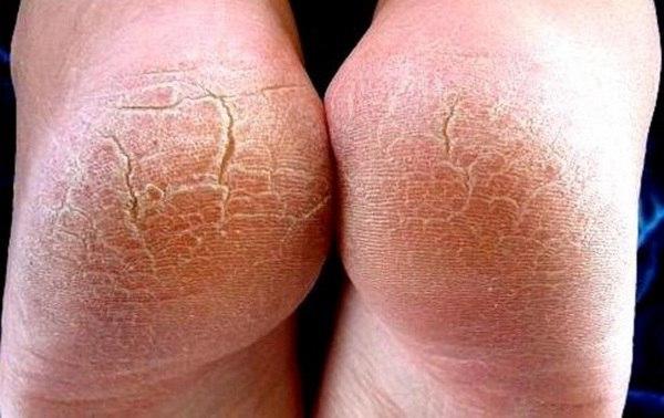Причины лечение и профилактика трещин на пятках