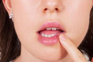 Проблемы рта