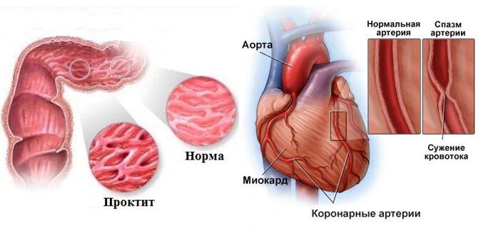 Проктит, спазм артерий