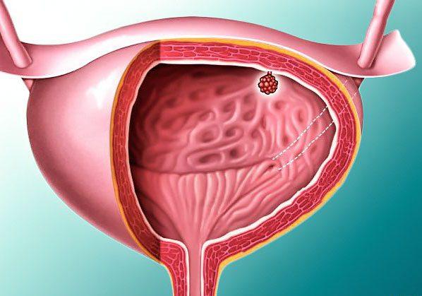Как лечат опухоли мочевого пузыря у женщин