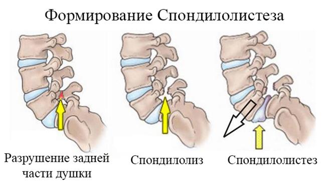 Формирование Спондилолистеза