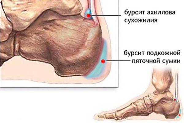 Область появления бурсита ахиллова сухожилия и подкожной пяточной сумки
