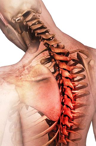 Проявление грудного остеохондроза