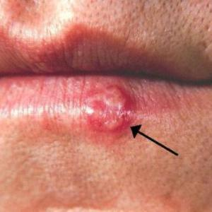 Сыпь на губе