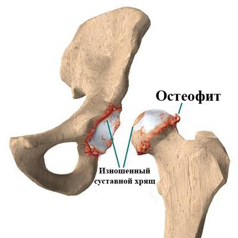 Как выглядит остеофит