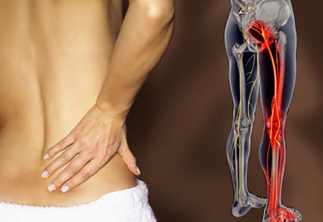 Боль в спине, отдающая в ногу
