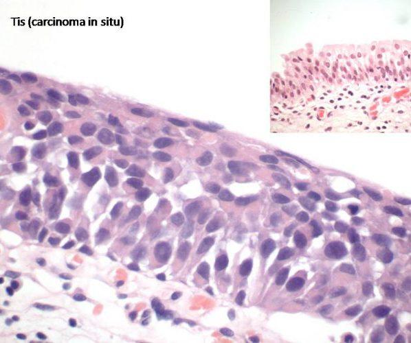 Cancer in situ