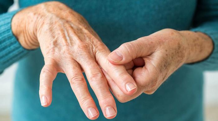 Симптомы ревматоидного артрита