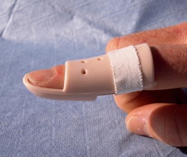 Молоткообразный палец кисти