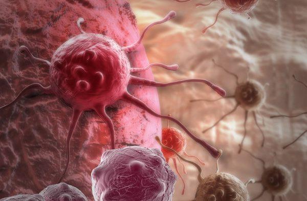 Прогнозы на выздоровление после удаления рака почки