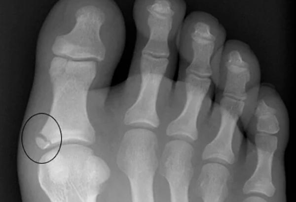 Перелом большого пальца ноги на снимке