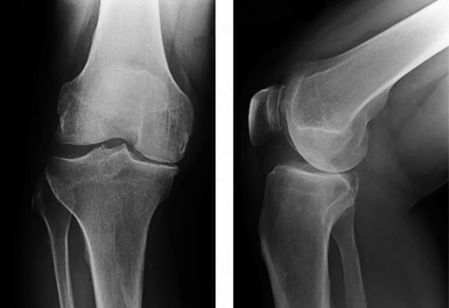 Снимок колена