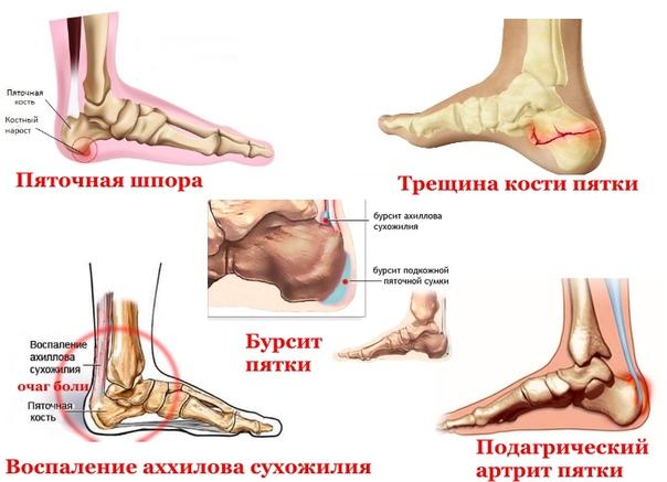 Возможные заболевания пяточной кости